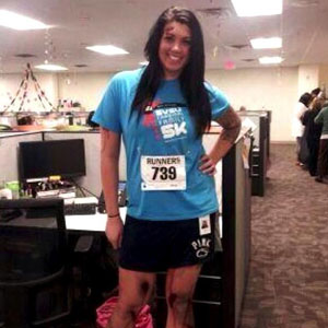 Alicia Ann Lynch, 22, Harassed After Photo Of Her Dressed As Boston Marathon Bombing Victim For Halloween Goes Viral